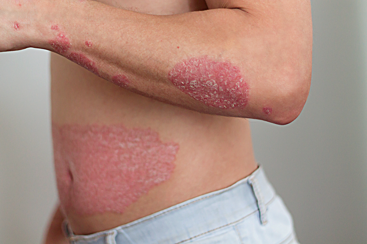 the man on the arm and abdomen psoriasis