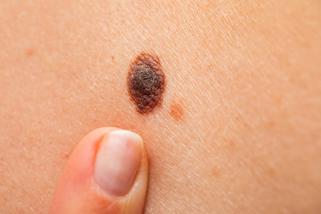Dangerous nevus on skin – melanoma